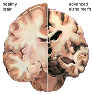A drawing of a human brain contrasting the size and mass of a normal brain with a brain affected by AD.