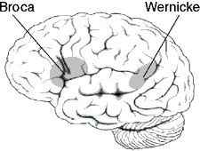 A drawing illustrating Brocas and Wernickes areas in the human brain.