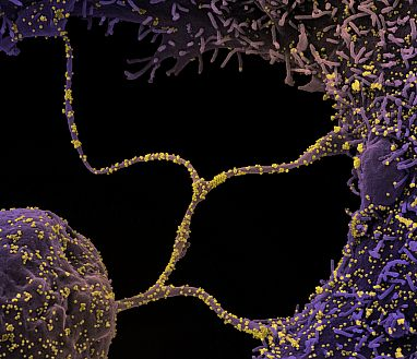 Cells infected with SARS-CoV-2 virus particles (yellow).
