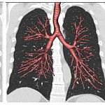 A CT scan of human lungs.