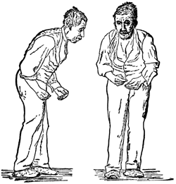 Front and side views of a man with a festinating gait
