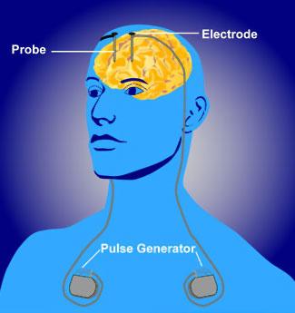 Deep Brain Stimulation Diagram