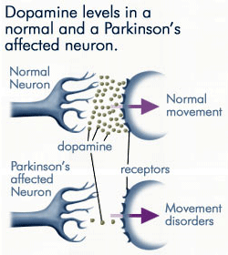 Dopamine levels in a normal and a Parkinsons affected neuron