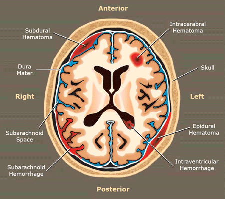 A drawing showing the most common types of hematoma in the human brain.
