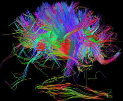 White matter fiber architecture of the brain. Measured from diffusion spectral imaging (DSI).