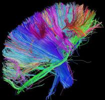 White matter fibers of the brain and the brainstem.