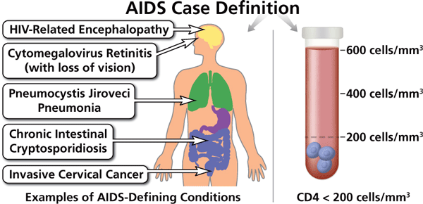 Illustration of AIDS-Defining Conditions