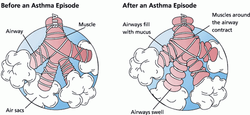 Illustration of an airway before and after an asthma episode.