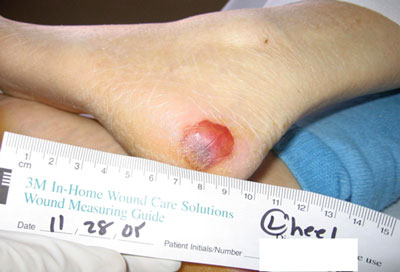 Photo of Blood Filled Blister on Foot