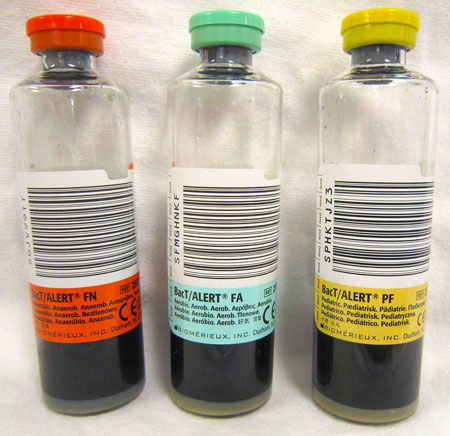 Photo of Blood Culture Tubes