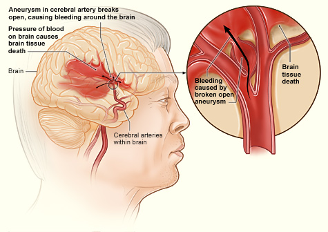 An illustration of a ruptured aneurysm.