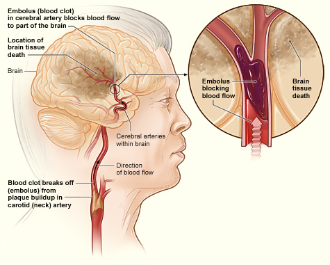 An illustration showing a blocked carotid artery and ischemic stroke.