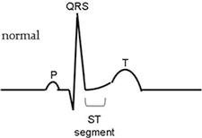 Normal ECG waveform.