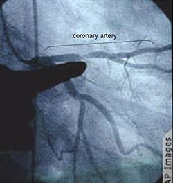 Angiograph of a stenotic segment in a coronary artery.