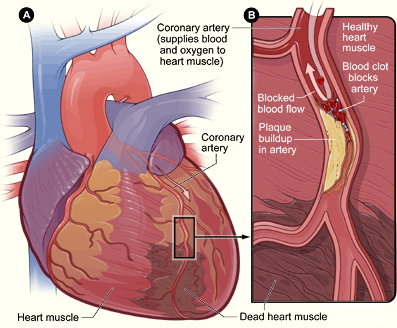 A drawing of the heart showing a myocardial infarct in a coronary artery.