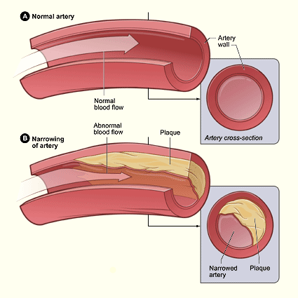 A drawing showing a normal artery and an artery narrowed by plaques.