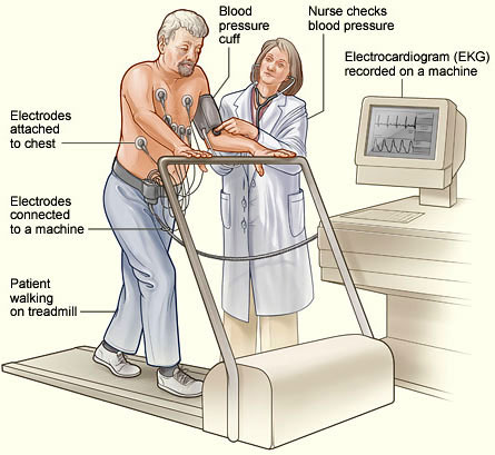 A patient undergoing a cardiac stress test.