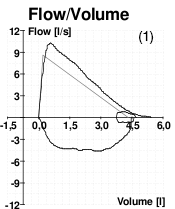 A graph showing peak flow volume for a patient without COPD.