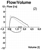 A graph showing peak flow volume for a patient with poor effort.