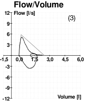 A graph showing peak flow volume for a patient with asthma.