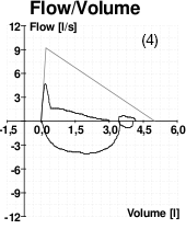 A graph showing peak flow volume for a patient with COPD.