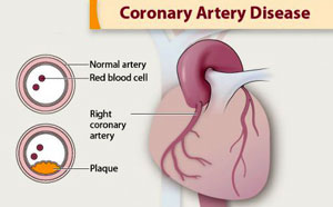 Illustration of coronary arteries and plaque