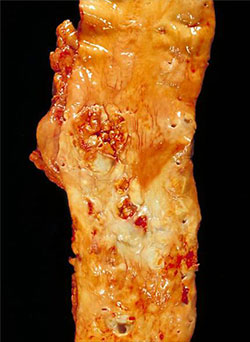 An image of the aorta showing extensive atherosclerosis of its walls.