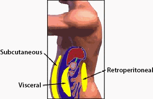 An illustration of subcutaneous and intra-abdominal fst.