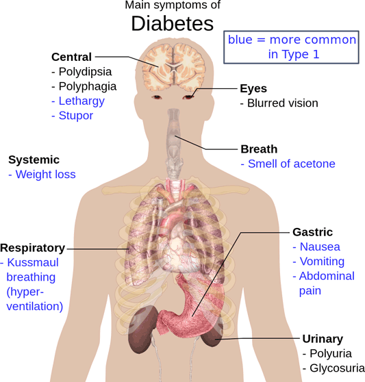 Image: Main Symptoms of Diabetes