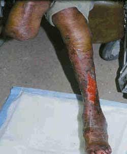 A photograph of a man's leg showing a poorly healing leg ulcer.