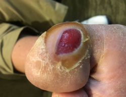 Photo of Diabetic Foot Ulcer