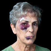 photo of battered woman