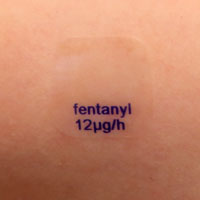 A photo showing a transdermal fentanyl patch on a person's skin.