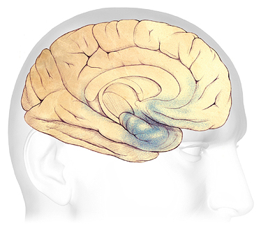 An illustration of changes to the brain in mild dementia.