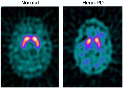 I-FP-CIT SPECT images of healthy volunteer and patient with early hemi-PD