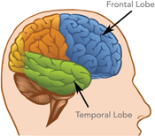 A drawing of the brain showing the location of the frontal lobe