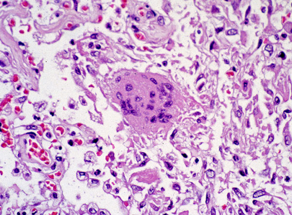 Photomicrograph of Lung Tissue Pathology Due to SARS