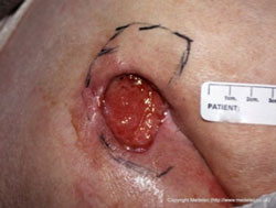 Photo of Stage 3 Full Thickness Wound