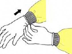 A drawing showing the proper procedure for donning gloves.