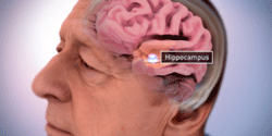 Image: Location of Hippocampus in the Brain