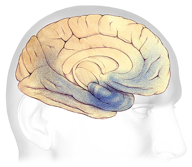 An illustration of changes to the brain in moderate dementia.