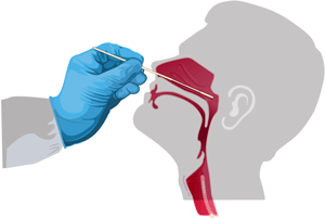Gathering a Respiratory Specimen: Nasopharyngeal Swab