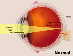Illustration showing how normal eye focuses