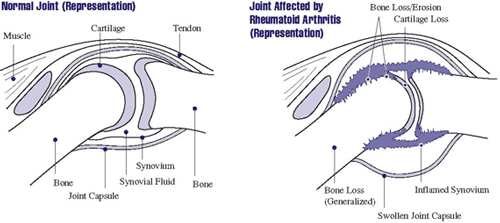 Illustration of Normal Joint and Joint Affected by Rheumatoid Arthritis