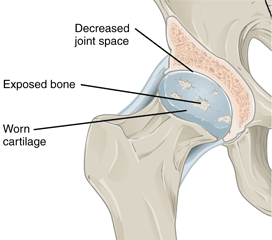 An illustration showing a hip joint with osteoarthritis.