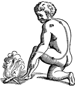 A 1664 illustration of pain pathway by René Descartes.
