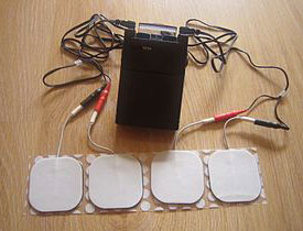 TENS (Transcutaneous Electrical Nerve Stimulator)