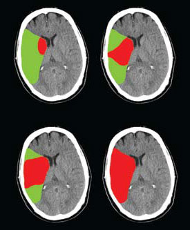 illustration of damaged and at risk tissue (penumbra) after an ischemic stroke