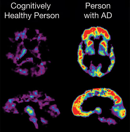 PET scan of healthy brain vs. person with Alzheimer's.