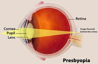 Illustration showing focus of eye with presbyopia